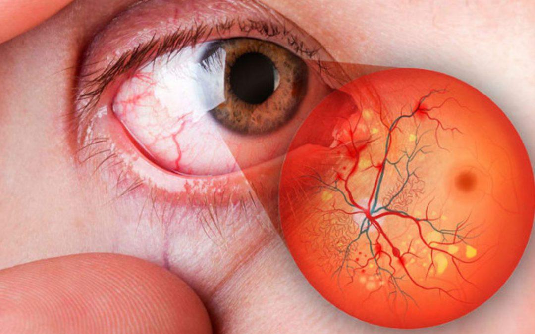 En San Marcos presentan proyecto para optimizar el diagnóstico de la retinopatía diabética